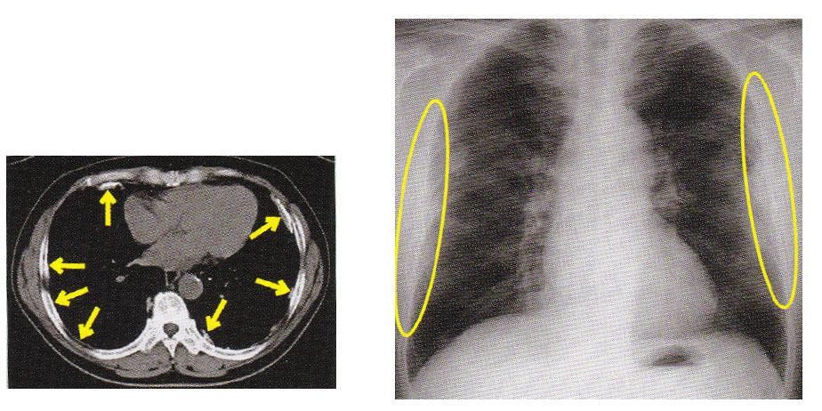 病院からレントゲン写真を借り受け所属支部に届けて<ださい。石綿専門医による胸部レントゲン再読影(無料)を受けられます